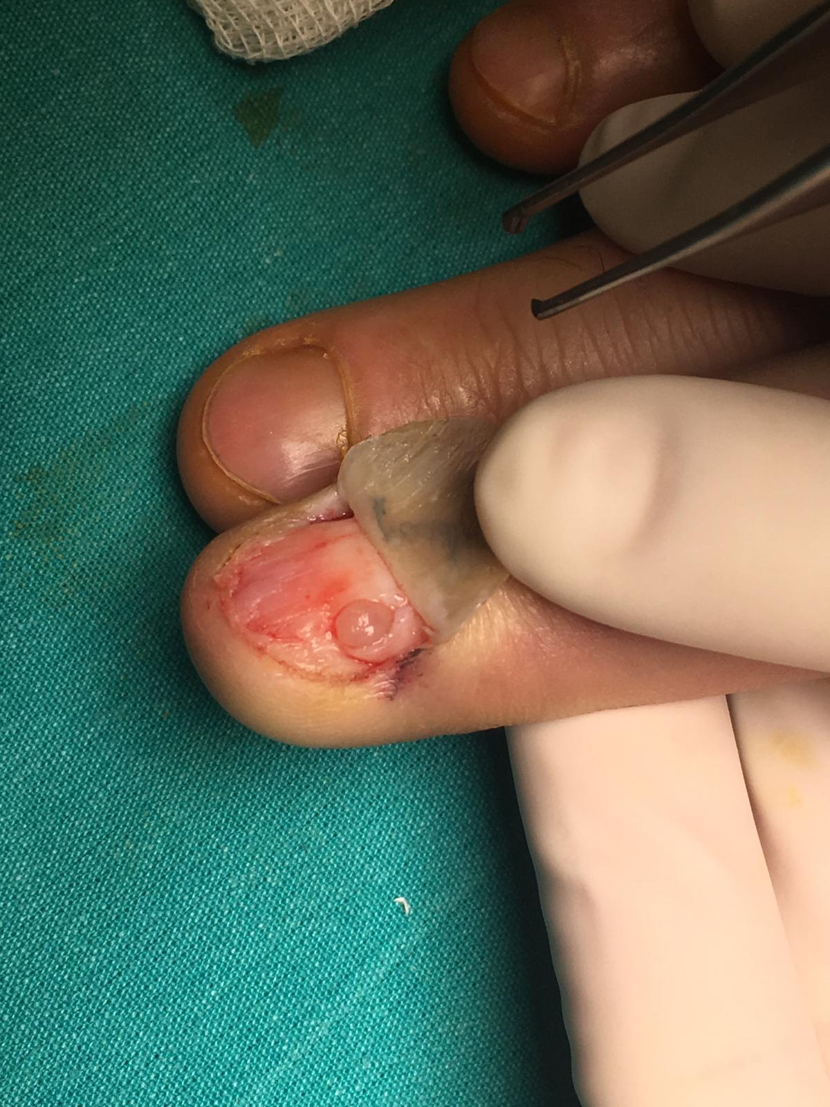 glomus tumoru istanbul elcerrahisi